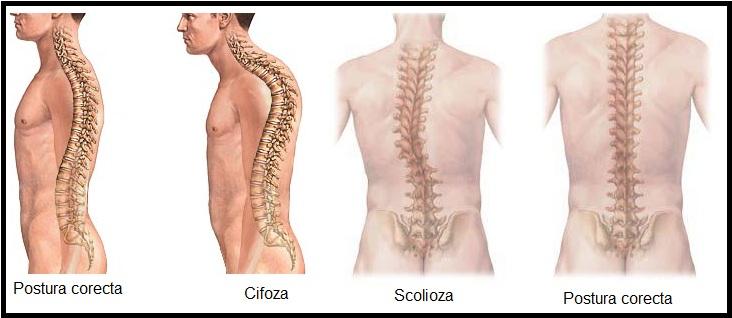 Cum te ajută Tai Chi Chuan să ai o coloană vertebrală sănătoasă