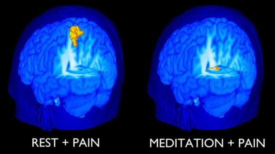 Beneficiile meditatiei - usureaza durerea