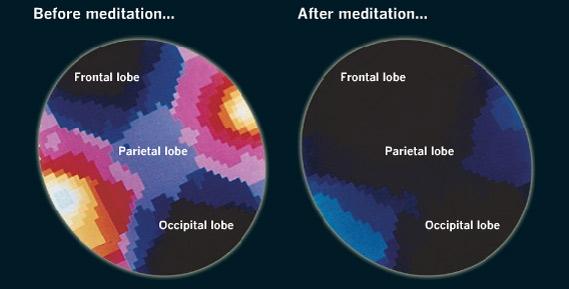 Beneficiile meditatiei - scanarea creierului